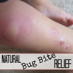 Three Ways to Relieve Bug Bites Naturally